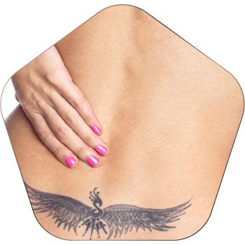 Tattoo Removal Treatment In Hyderabad
