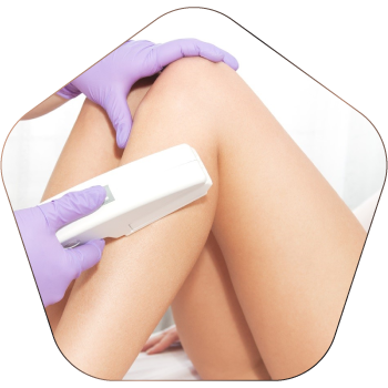 Best Laser Hair Removal Treatment In Hyderabad