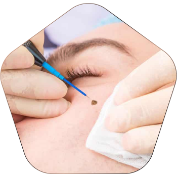 Mole Removal Treatment In Hyderabad