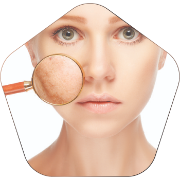 Pigmentation Treatment In Hyderabad