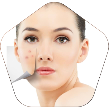 Scars Treatment In Hyderabad