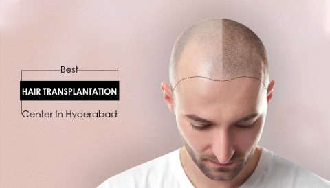 Best hair transplant centre in Hyderabad.