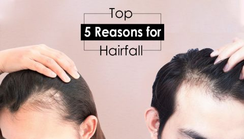 Top 5 Reasons for Hairfall