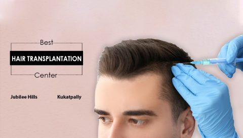 Hair transplantation Center in Jubileehills, Hyderabad For Men & Women