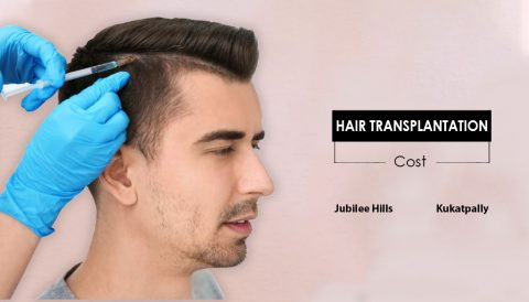 Hair Transplantation Cost For Men & Women In Jubilee Hills, Hyderabad.