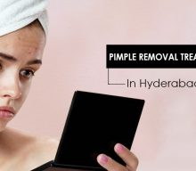 Best pimple removal treatment and its procedure in science of skin Jubilee Hills, Hyderabad