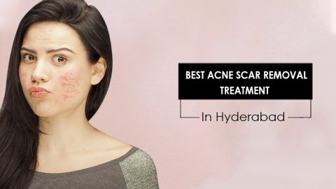 Find the Best Acne Scar Removal Treatment Procedure Fits For Your Skin At Science Of Skin clinics Jubilee Hills, Hyderabad.