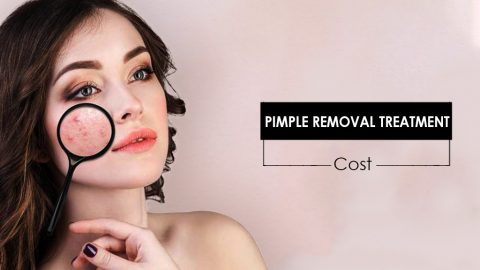 Best Pimple Removal Treatment Cost In Science Of Skin Clinic At Hyderabad.