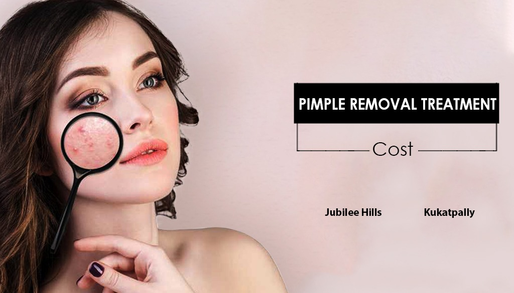 https://www.scienceofskinclinic.com/wp-content/pimple-removal.jpeg