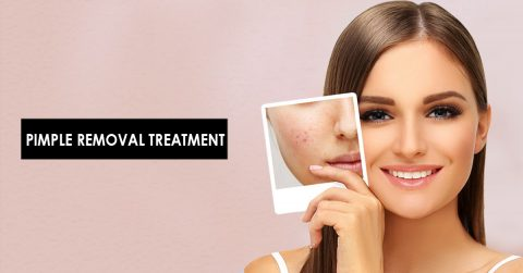 Best Pimple Removal Treatment With Advanced Micro Needling Technology In Hyderabad.