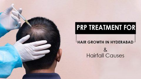 PRP Treatment For Hair Regrowth In Hyderabad And Causes Of Hair Fall.
