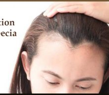 Traction Alopecia And It's Treatment In Hyderabad.