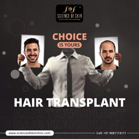 Best Hair Transplant Treatment in Hyderabad (April-2021)