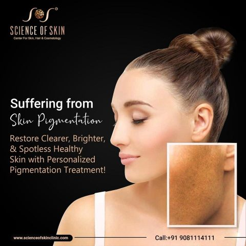 How to Treat HyperPigmentation with Expert Guidance?
