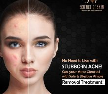TREAT YOUR PIMPLES QUICK AND LEAD A CLEAR LIFE